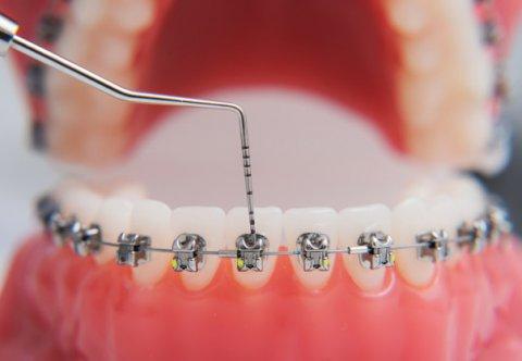 Profesjonalna asystentka ortodontyczna (warsztaty: część II)