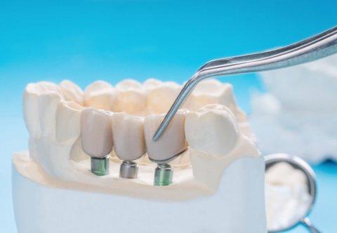 Implantologia dla asystentek stomatologicznych (teoria+warsztaty) cz.I.